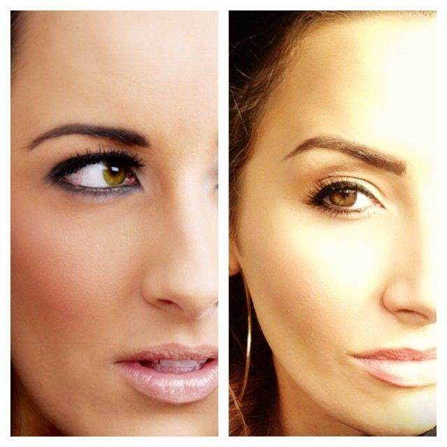 Botox brow lift is the new thing in town botox brow lift 01 solutioingenieria Choice Image