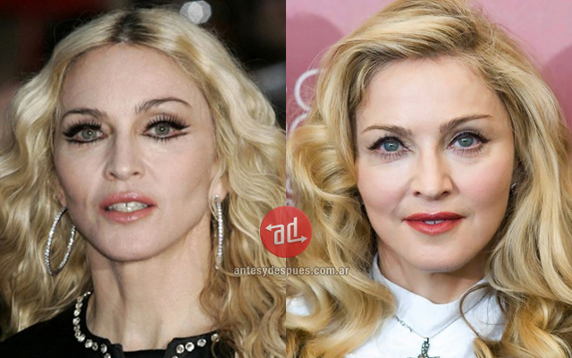 Top 10 Hollywood Stars Before And After Botox Treatment