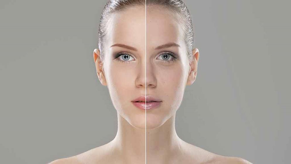 The Good And The Bad Of Botox 03