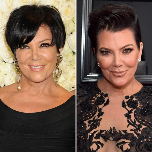 10 Popular Celebrities Who Have Had Facelift