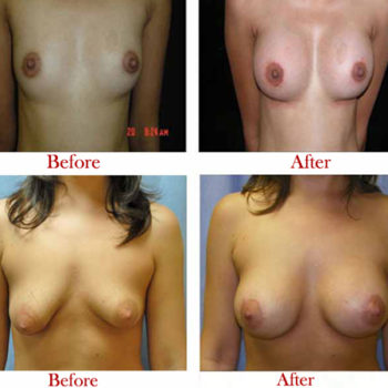 Breast-Augmentation-&-Breast-Implant-Surgery