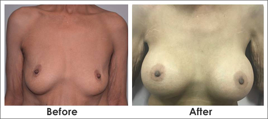 Breast-Implant-Surgery