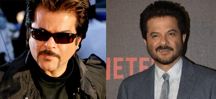 Anil Kapoor after Botox and surgeries