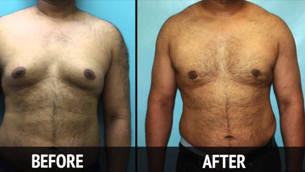 Male Breast Reduction Treatment
