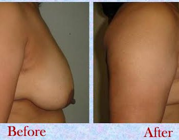 breast lift surgery cost in Delhi